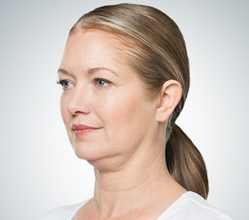 psi before kybella