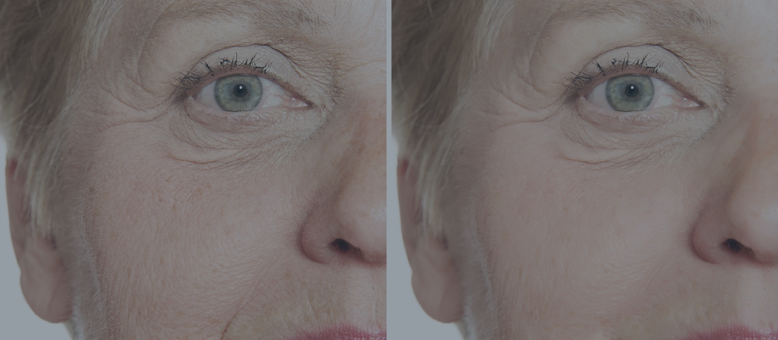 When is the Best Time for Laser Skin Resurfacing in Florida?