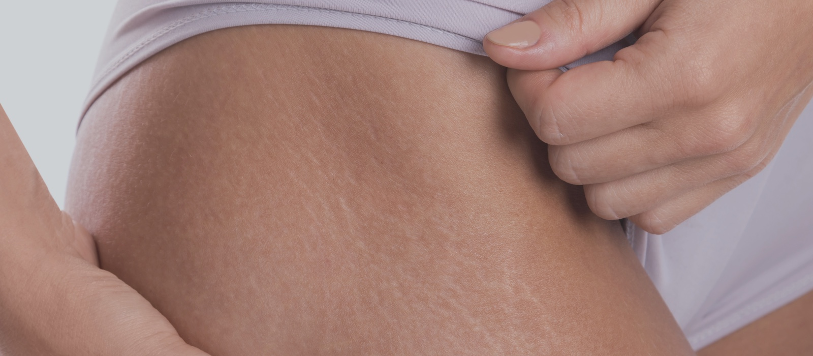 Lose the Stretch Marks for Good with Sublative Ematrix