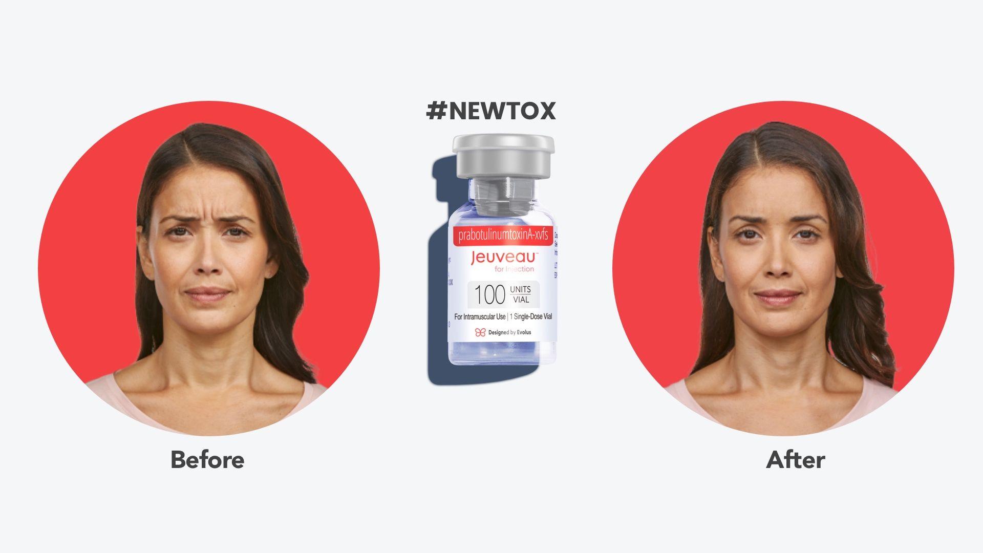 jeuveau-newtox-before-after